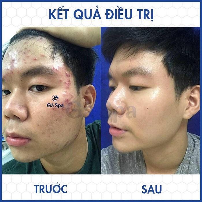 kết quả điều trị trước sau