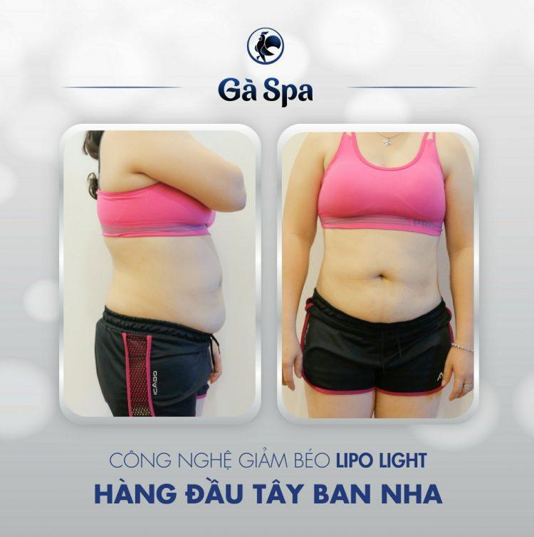 Công nghệ giảm béo Lipo Light