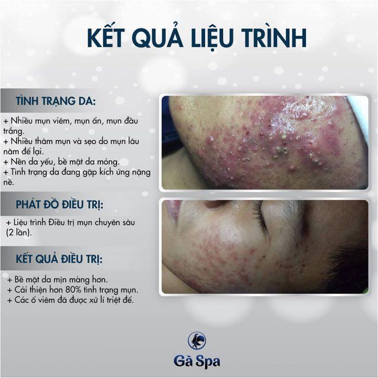 Review Khách Hàng Trị Mụn (10/1/2019)