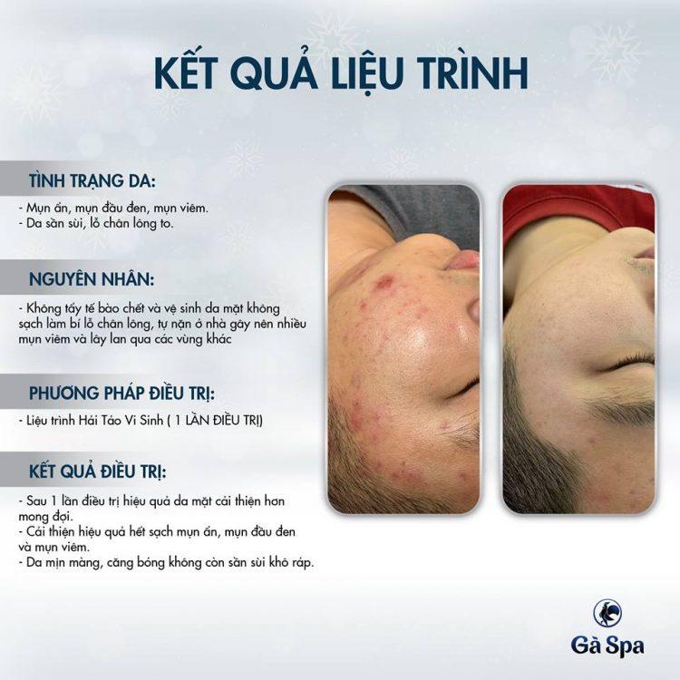 Review Khách Hàng làm Hải Tảo Vi Sinh (22/2/2019)